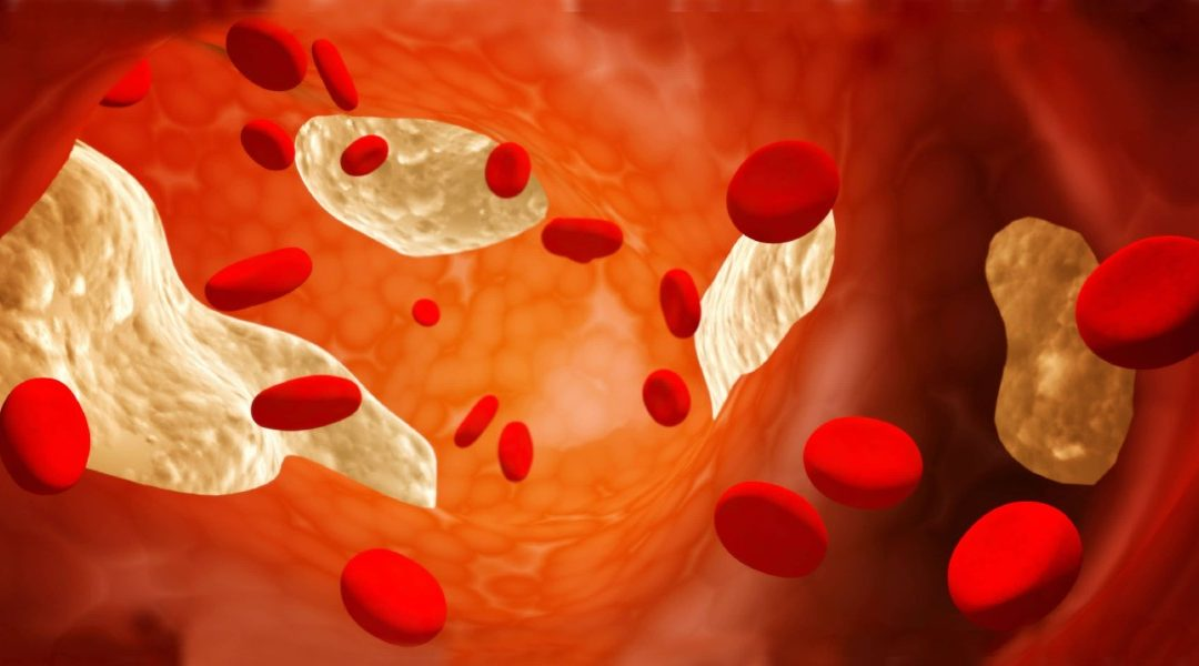 Colesterol ¿ Por Qué Es Fundamental?